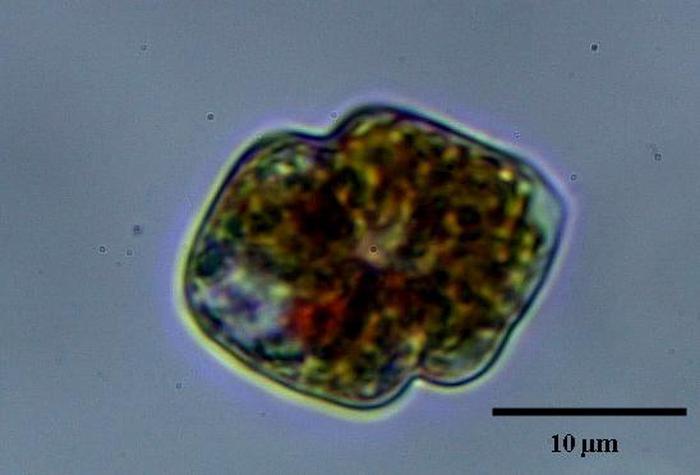 Woloszynskia Coronata R H Thomps Nordic Microalgae