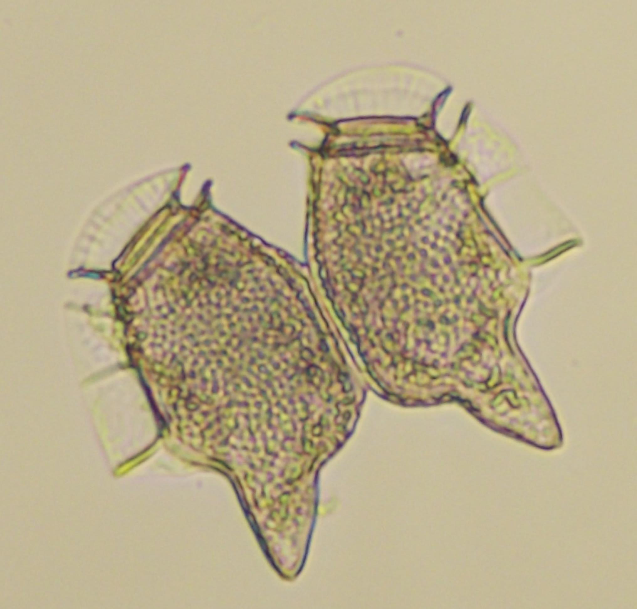 Dinophysis Caudata Saville Kent Nordic Microalgae