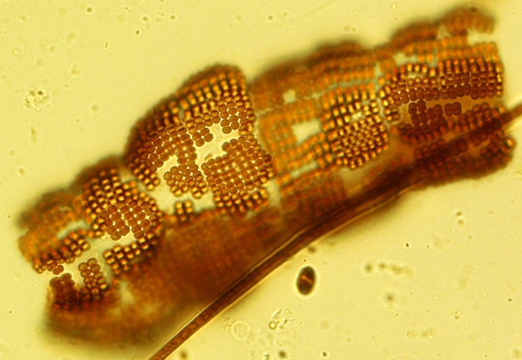 Merismopedia glauca (Ehrenb.) Kütz. | Nordic Microalgae