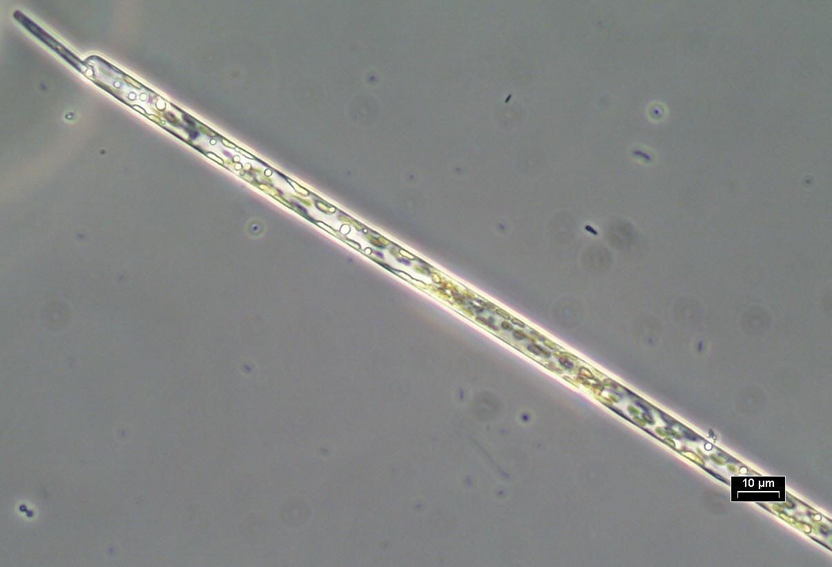 buy Helicobacter pylori Infection: Pathophysiology,