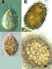 Photo of Scrippsiella trochoidea