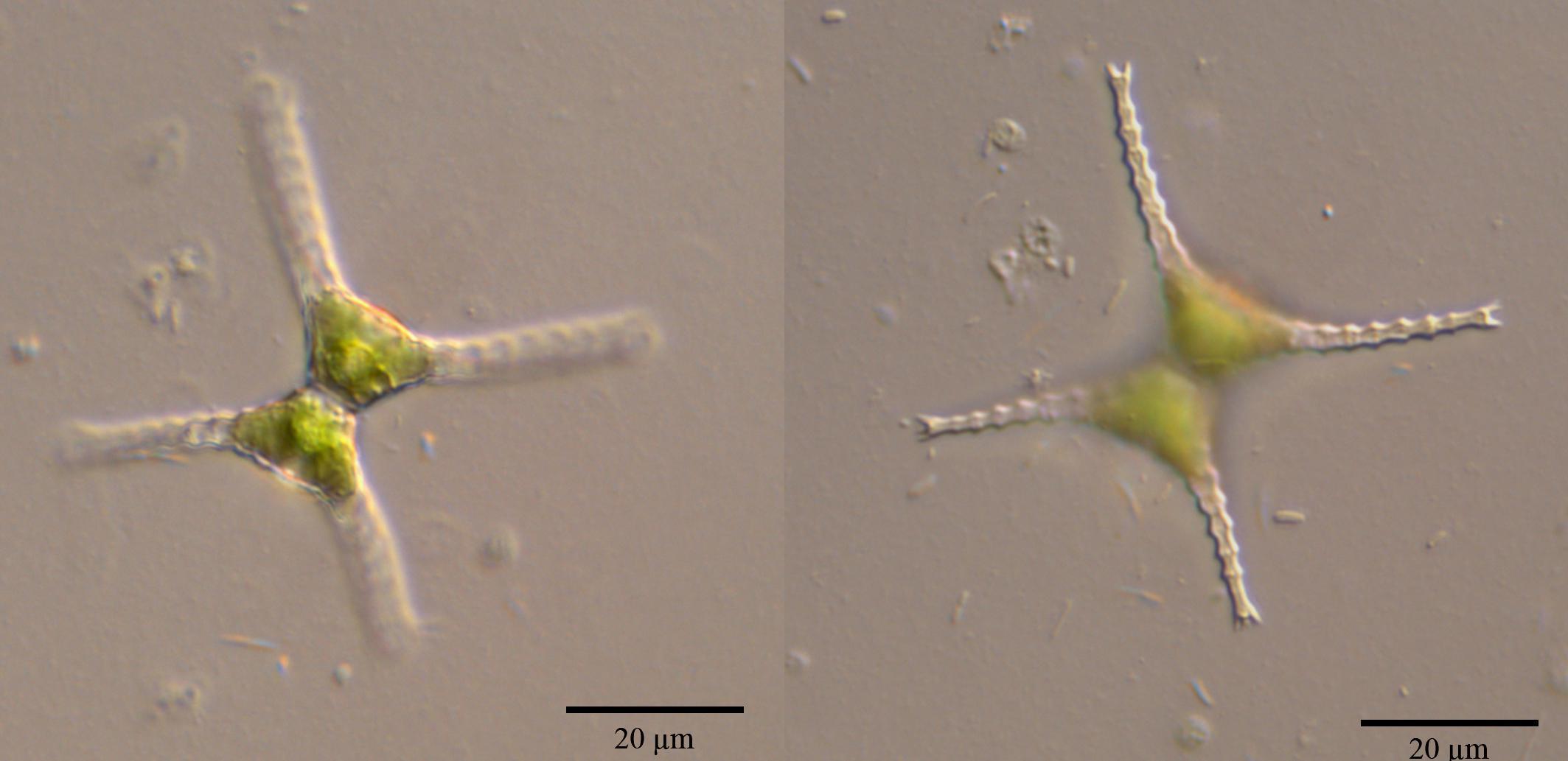 Staurastrum Chaetoceras Schr 246 D G M Sm Nordic Microalgae